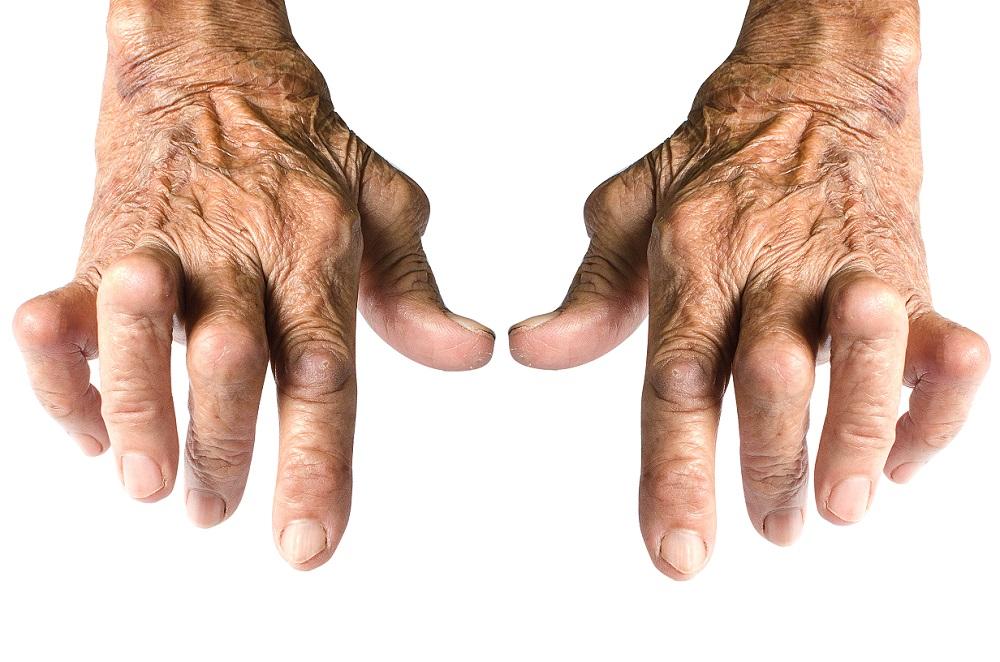 The Secret of Arthritis Treatment