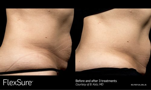 Flexsure Treatment - 3 Treatments before and after